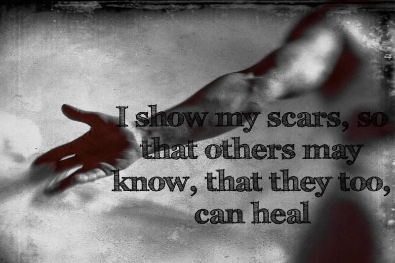 black and white photo of an outstretched arm with a quote: I show my scars so that others may know, that they too can heal